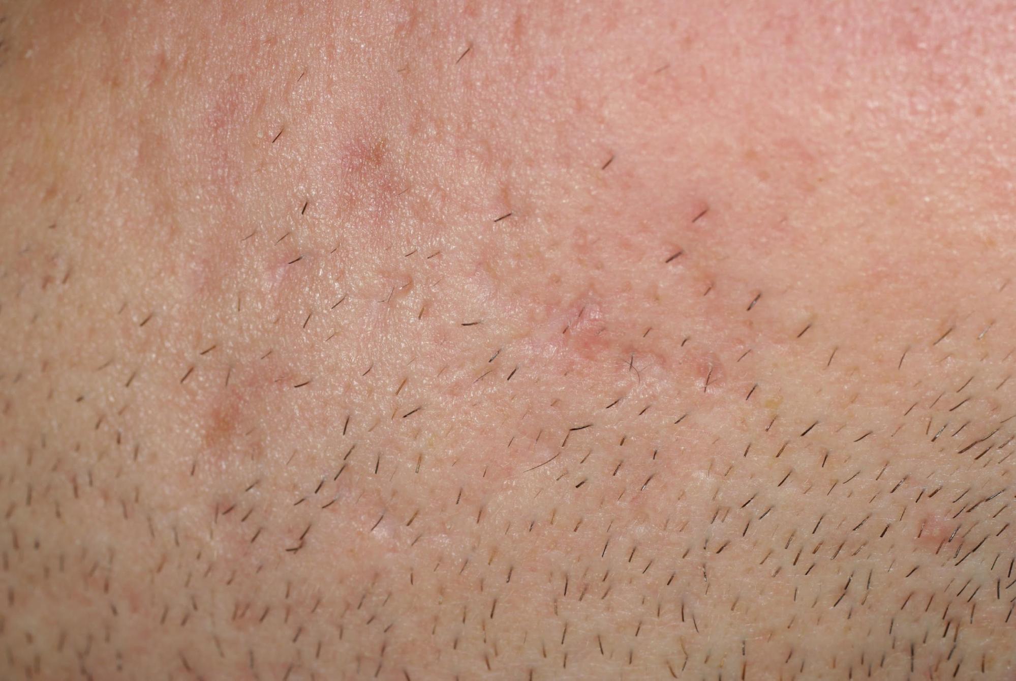 cicatrices en creux atrophiques