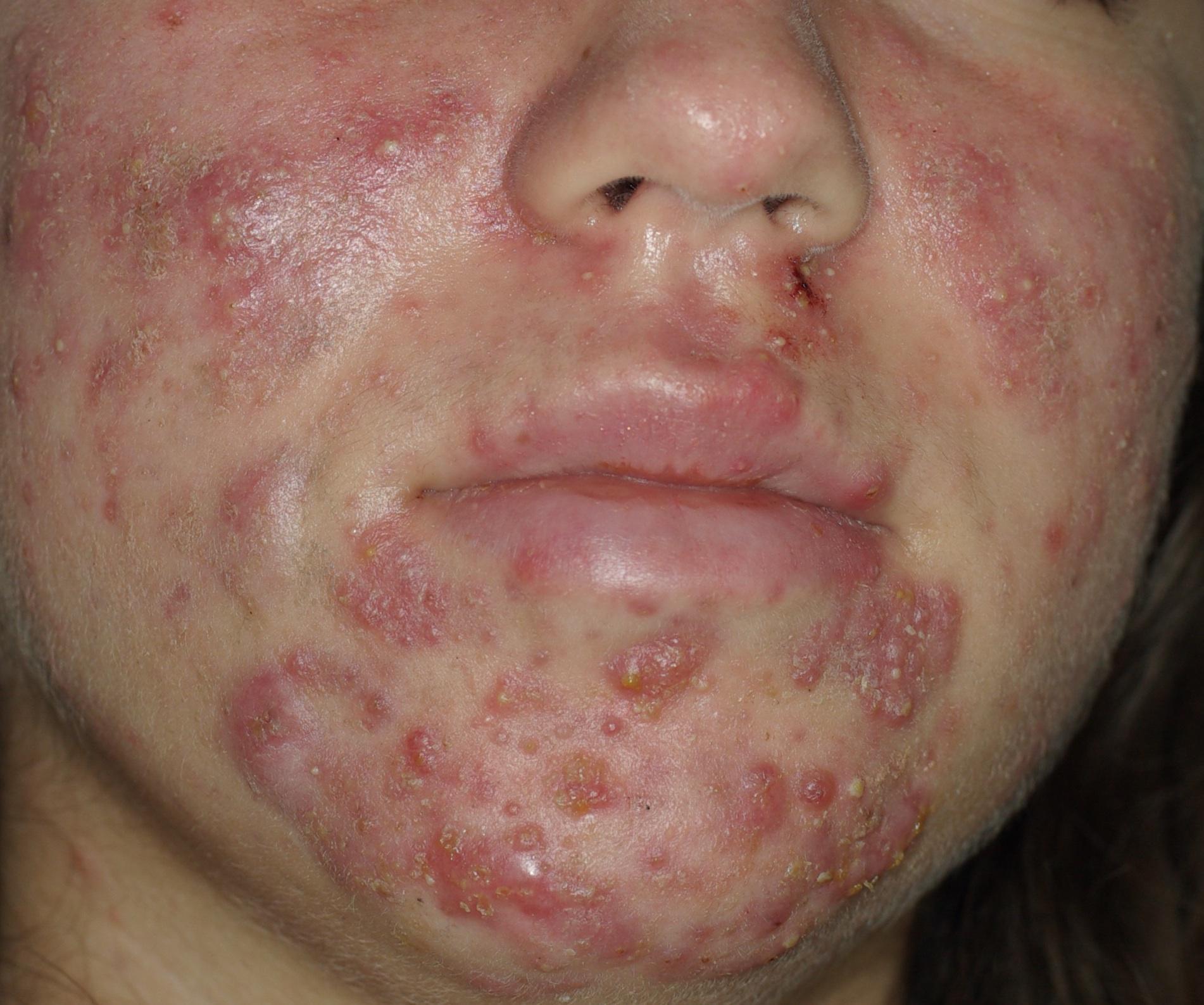 acné inflammatoire, nodules