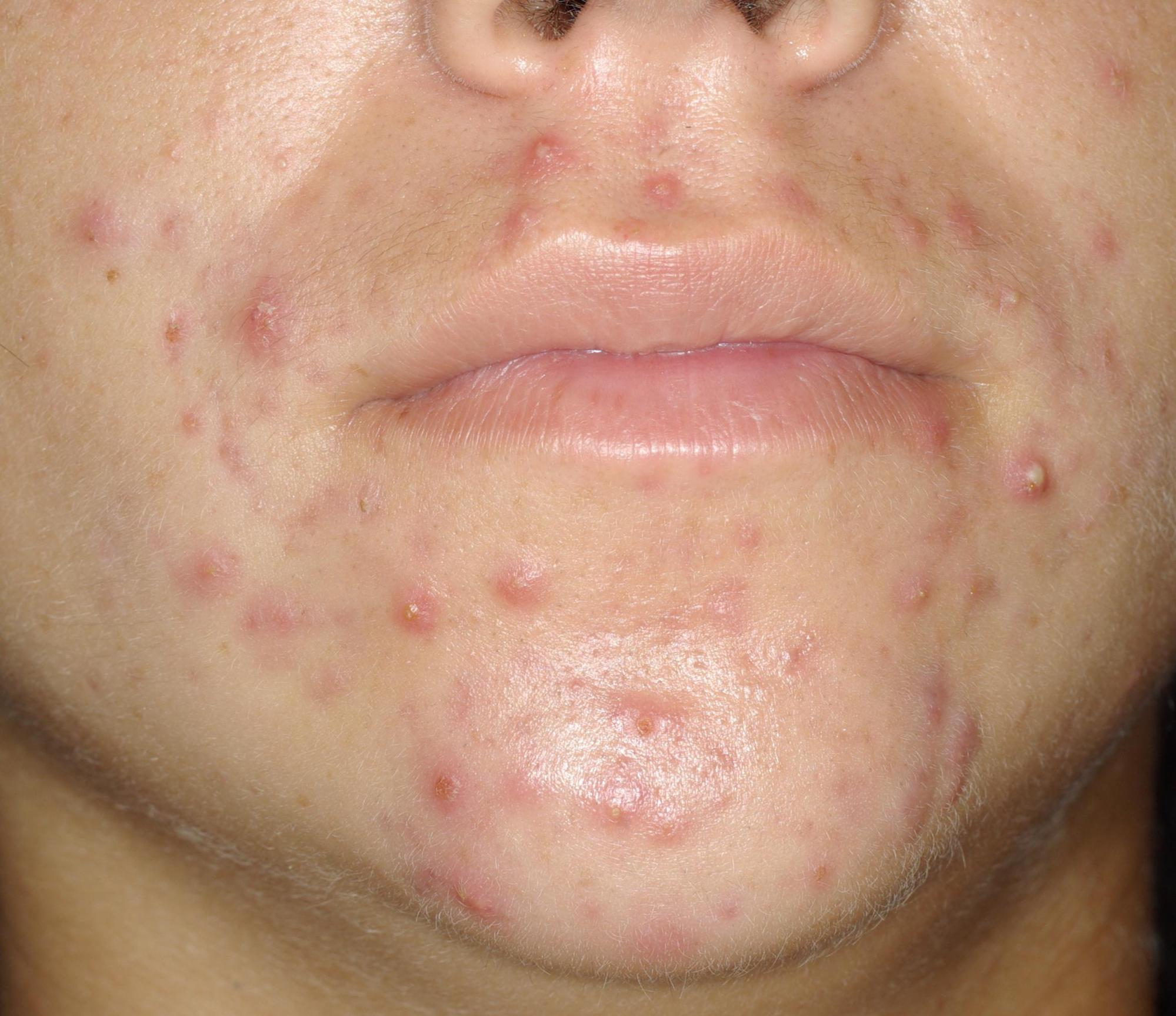 acné inflammatoire, papules pustules