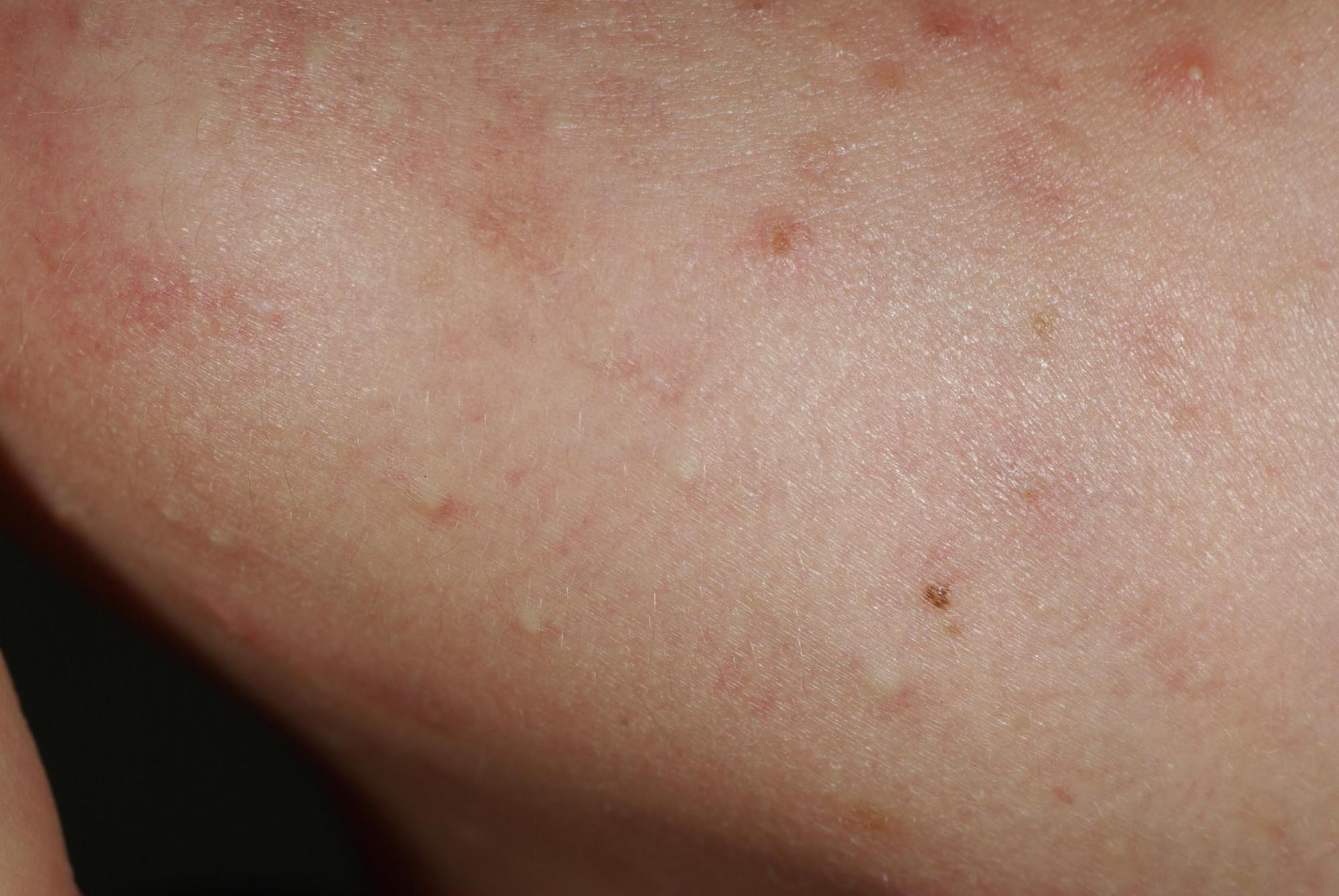 acné rétentionnelle,comédons fermés (microkystes)