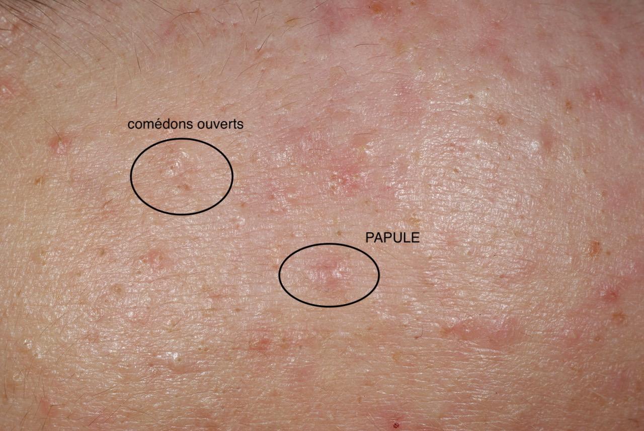 acné rétentionnelle, comédon ouvert