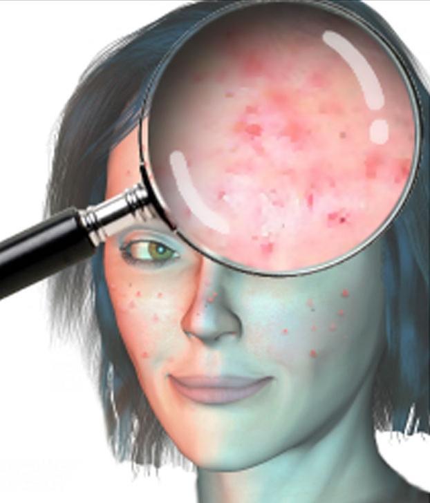 rencontre un garçon avec l'acné
