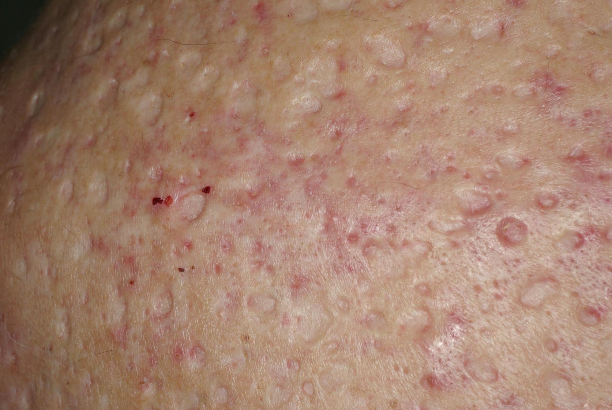 cicatrices nodulo-kystiques