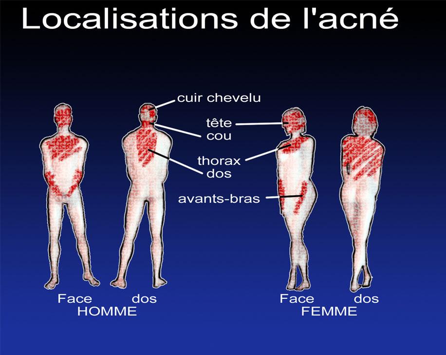 acne sur tout le corps
