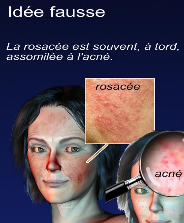 Les masques pour la personne le nettoyage de la peau