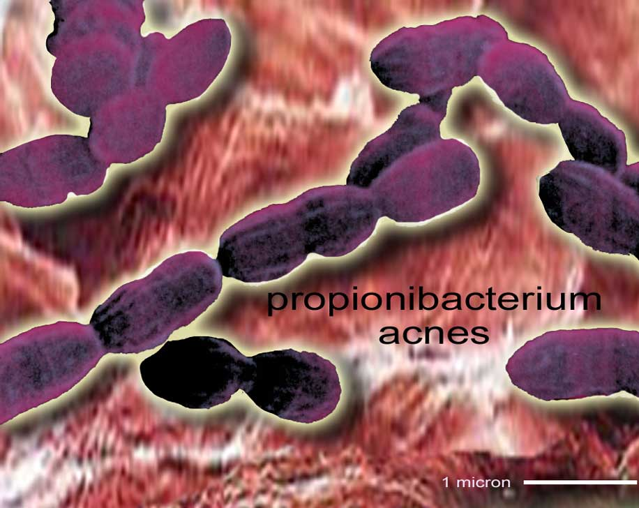 acne bacterie