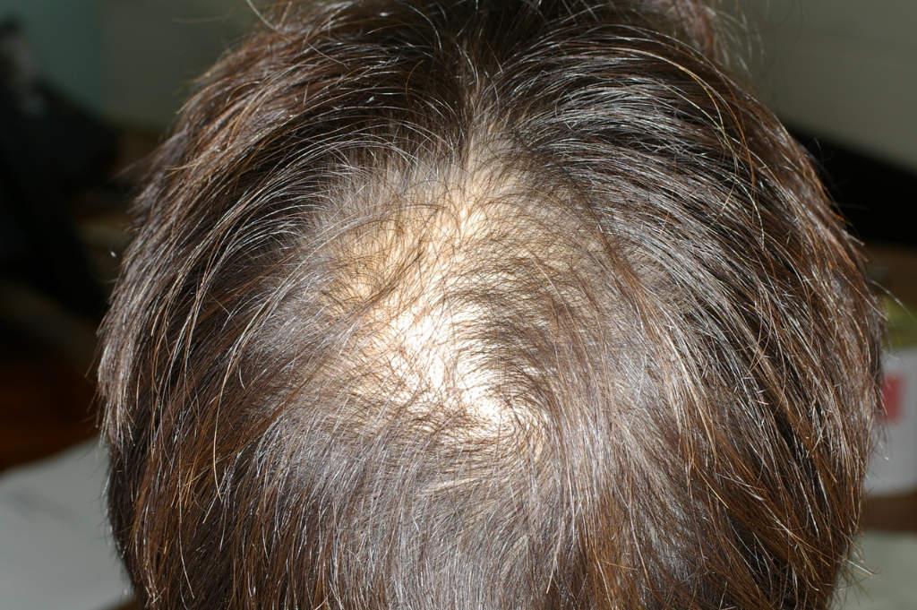 Pellicule cheveux femme cause