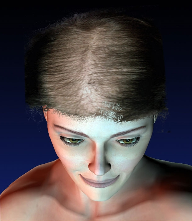 Perte de cheveux femme maladie