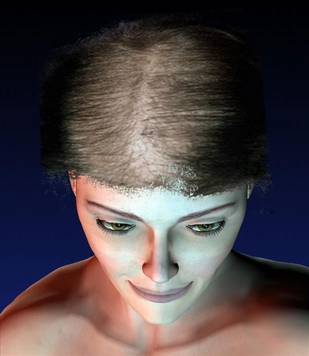 Eviter chute cheveux homme