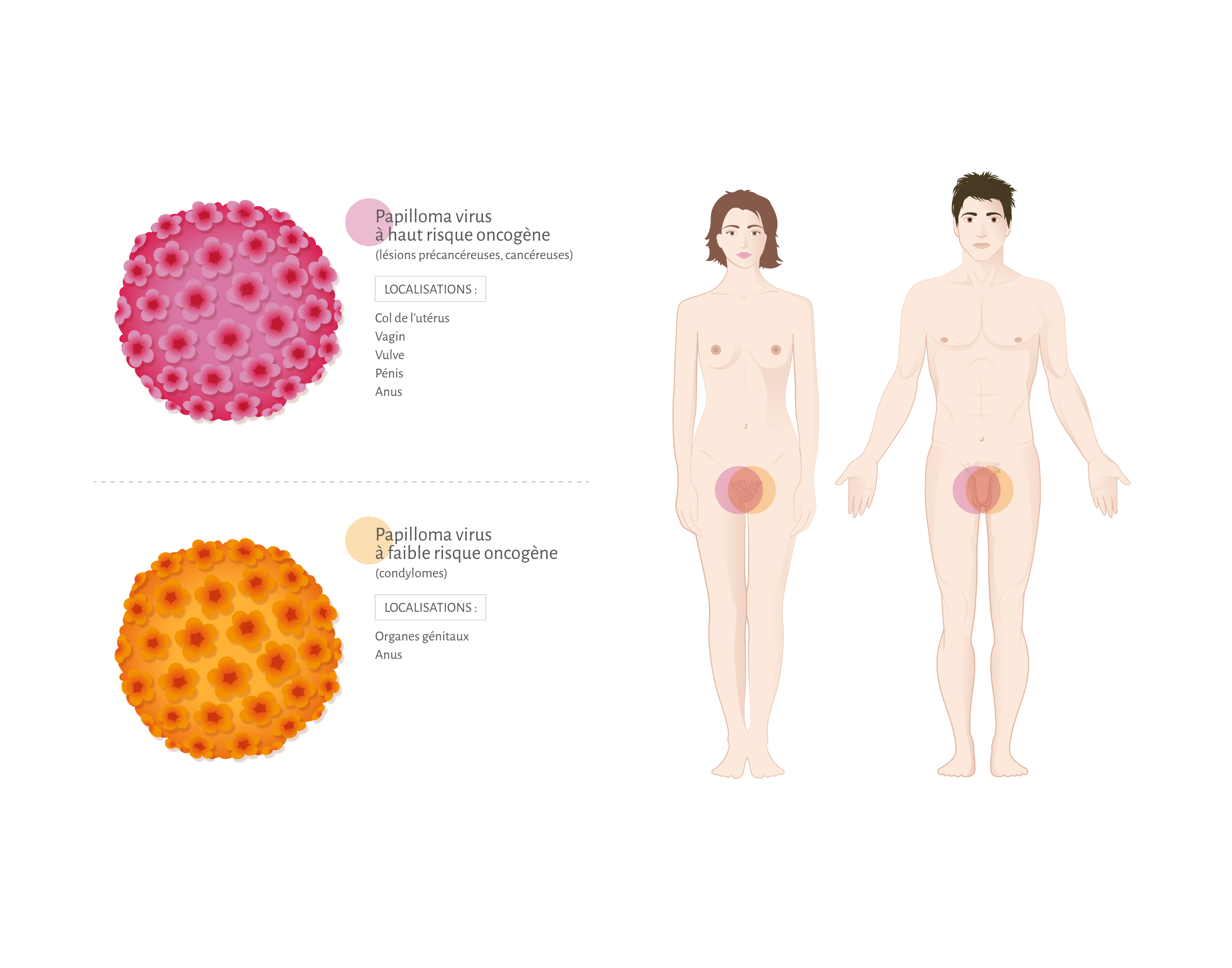 Papillomavirus et urticaire, Traducere