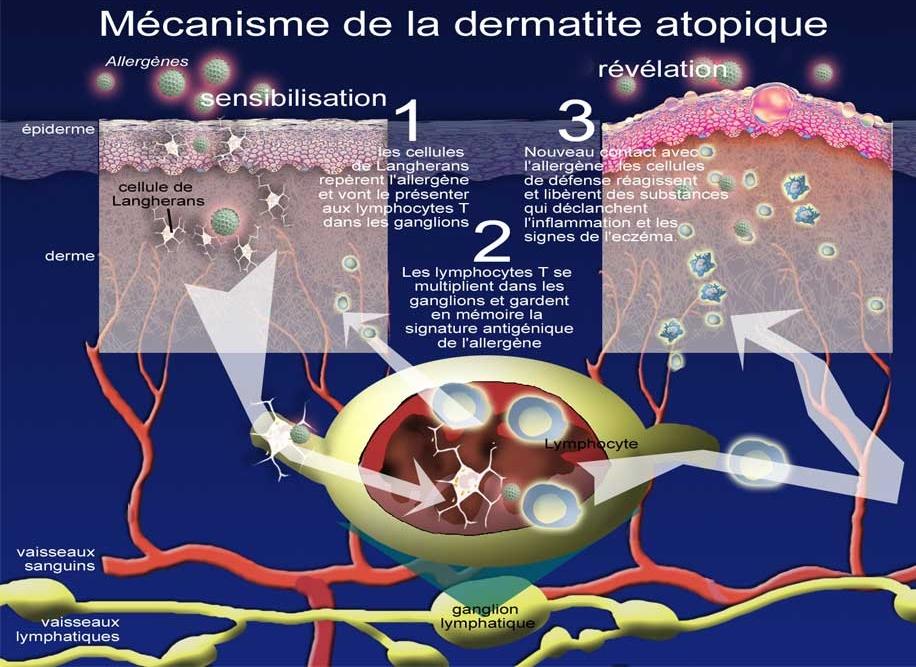 Au psoriasis il faut traiter lintestin