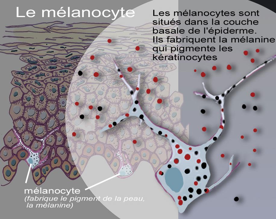 Dermato Info Les Mélanomes