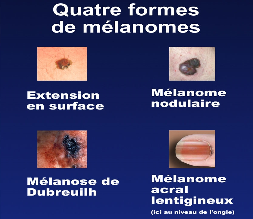 Quels onguents aident aux taches de pigment