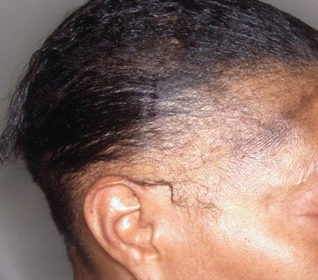Le masque pour la croissance des cheveu avec le jaune et le poivre