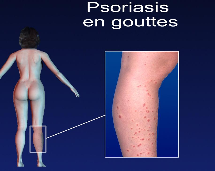 DERMATO-INFO, Le Psoriasis