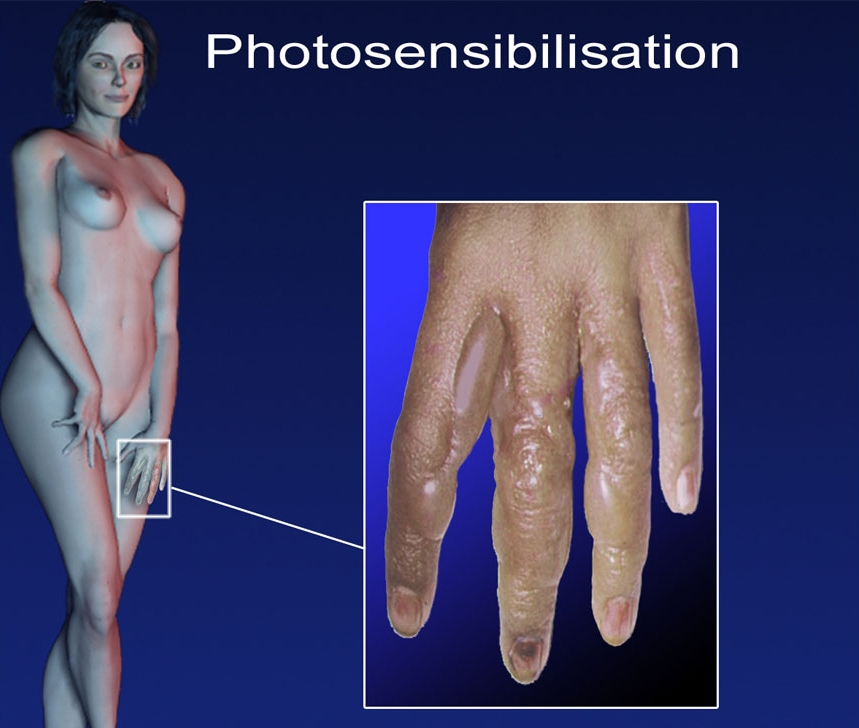 photosensibilisation
