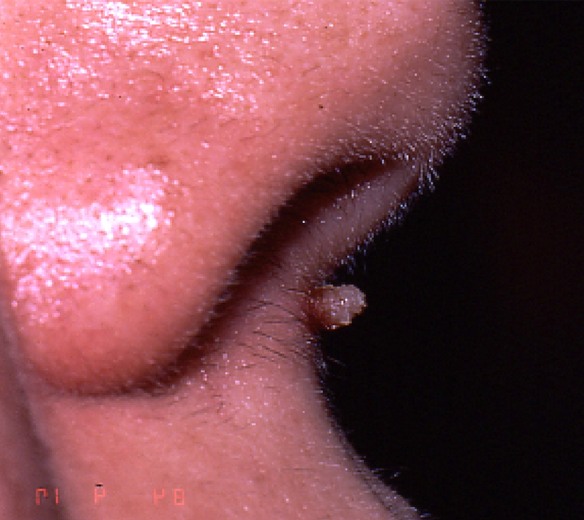 Papillomavirus verrue bouche. Vulva en Français - Roumain-Français Dictionnaire - Glosbe