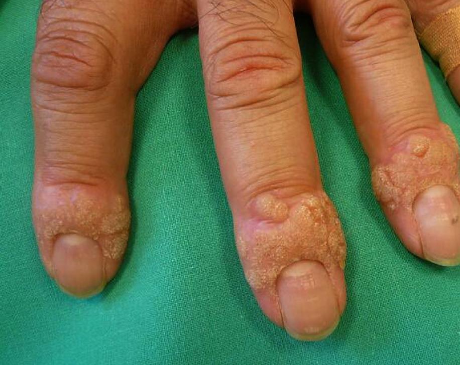 papillomavirus verrue doigt